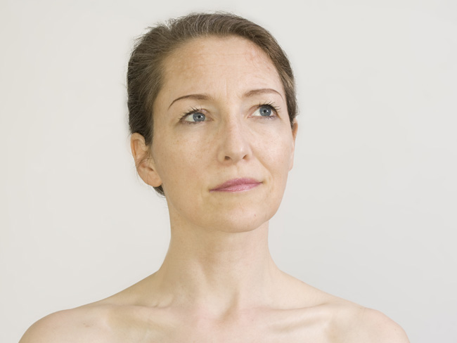 Get Rid of Hard-to-Treat Wrinkles With Lasers featured image