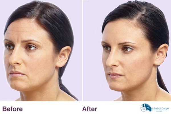 Before And After Botox Dermal Filler Results