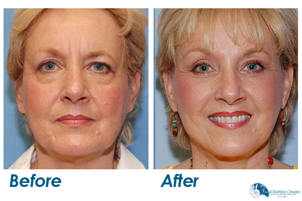 Facelift Before and After Chin eyebrows