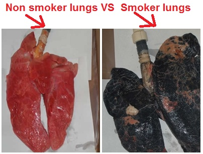 Image result for smoker lungs