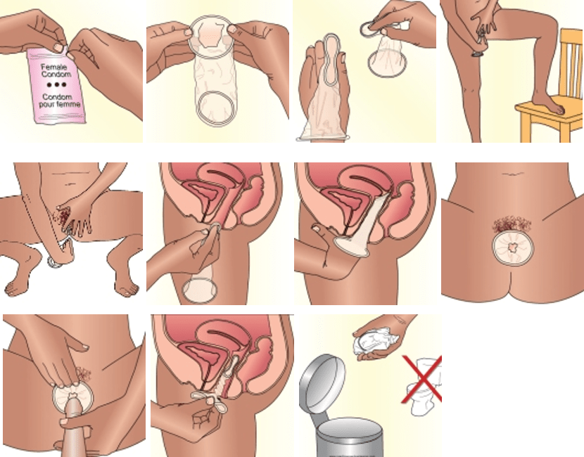 How to wear a female condom