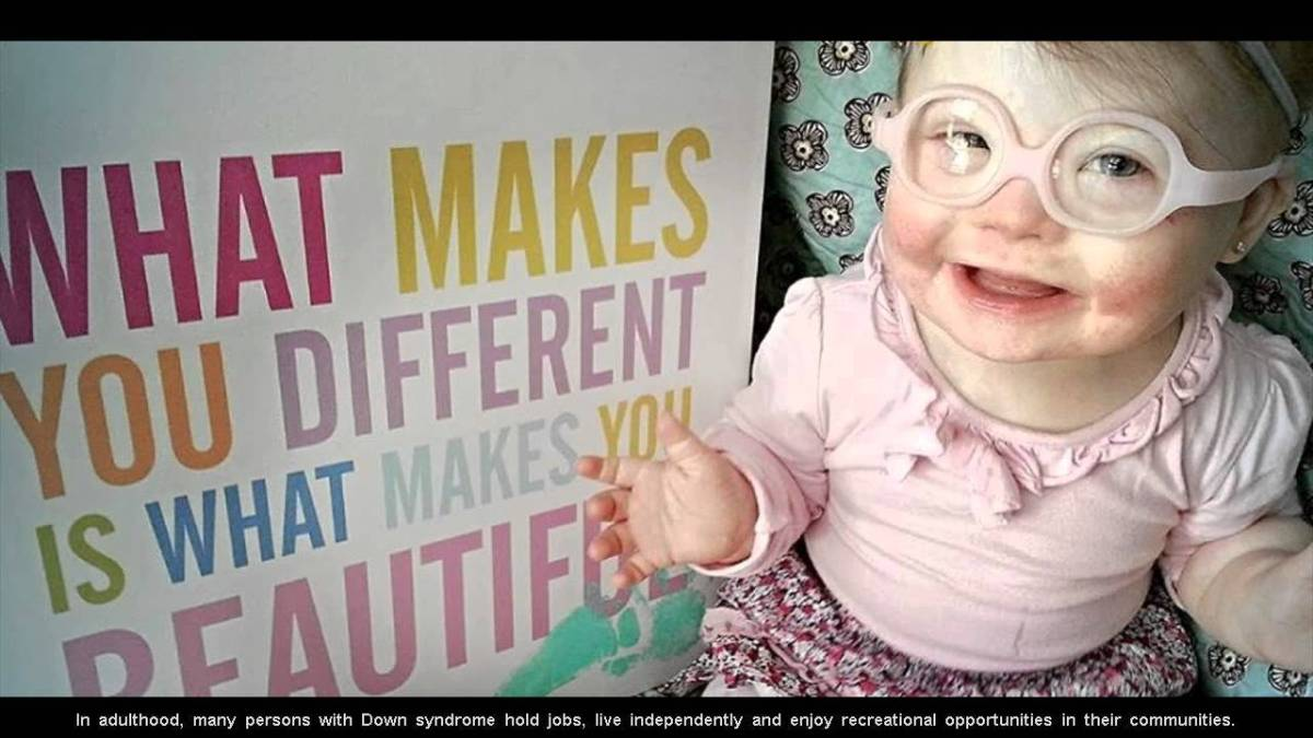 Down Syndrome Facts: 10 Interesting Facts about Down Syndrome