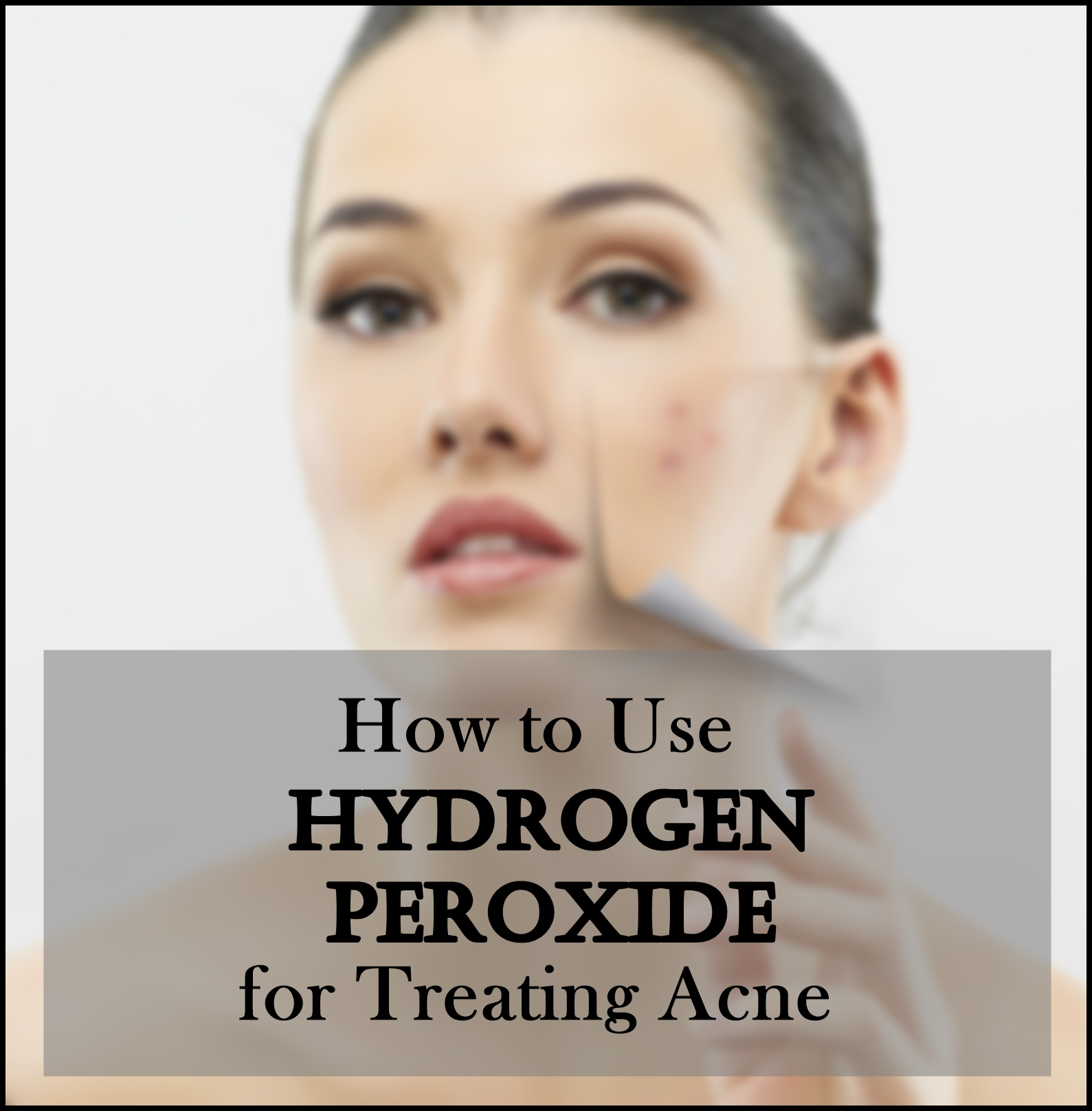 How to Use Hydrogen Peroxide for Treating AcneHow to Use Hydrogen Peroxide for Treating Acne