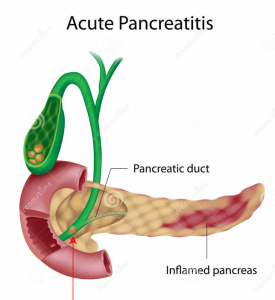 Pancreatitis. German New Medicine Education.