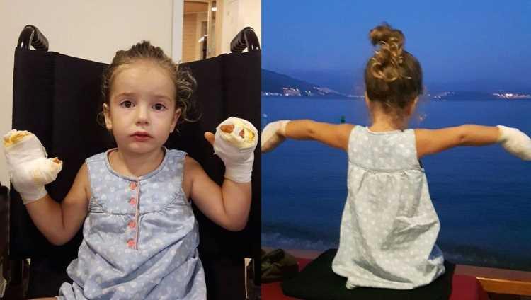 Воздушный шарик обжёг руки 3-летней девочки