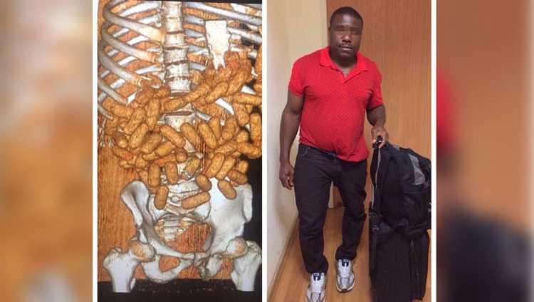 Нигериец провез в себе 2 кг кокаина в Стамбул