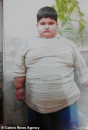 Despite having three siblings, Mohammed, pictured age five, cannot play with them as he cannot take more than three steps at a time