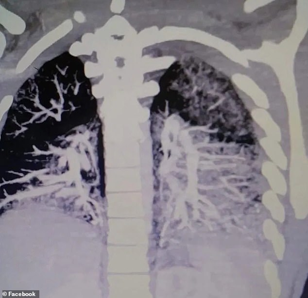 Shocking scan images show how smoking e-cigarettes left a 19-year-old's lungs filled with solidified vape oil and left him unable to breathe on his own