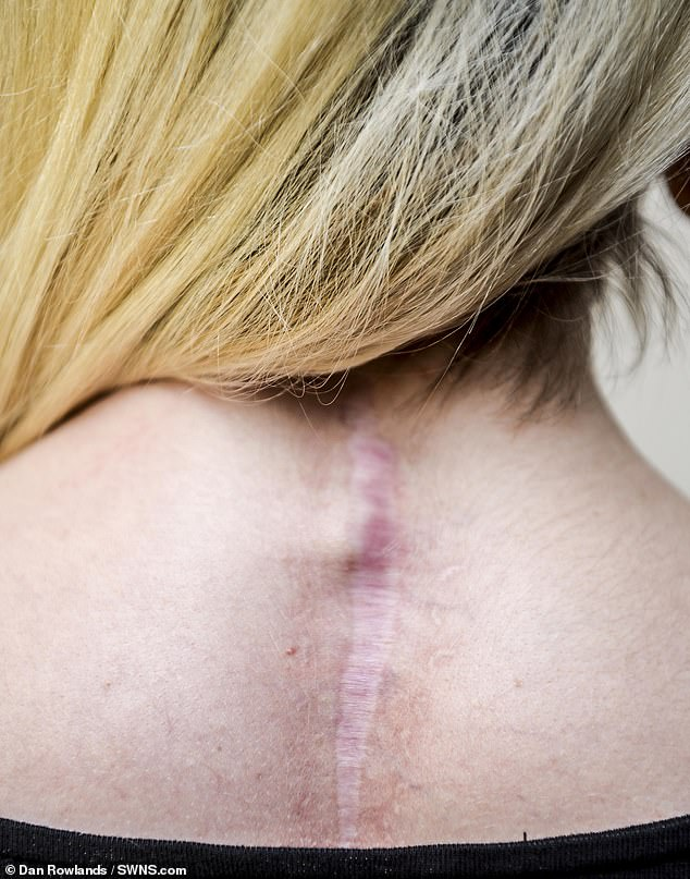 Her physiotherapist advised her to go for a private scan in August when the pains did not go away. The MRI revealed the cancer had spread to her spine, liver and stomach. Pictured after surgery to remove tumours from her spine