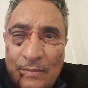 Dr Yahya al-Rewi, who was attacked after fleeing Yemen.
