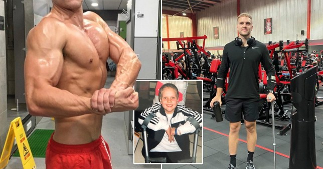 zachary jones, who defied the odds of his hip condition to become a personal trainer