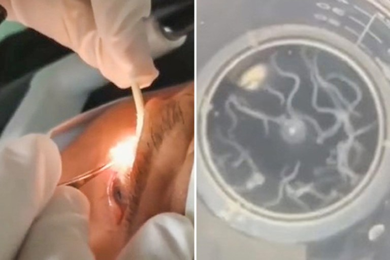 Horror moment doctor removes 20 wriggling WORMS from eye of patient who felt 'foreign body' squirming in head for months