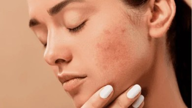 Problems and solutions regarding our skin