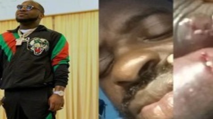 Davido A Wanted Man In Gambia For Allegedly Disfiguring Photographer's Face And Inflicting Body Injuries