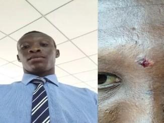 chrsj reveals police brutality