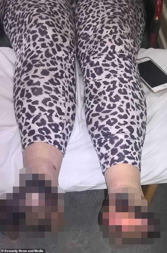 Miraculously, she pulled through after two months in hospital, despite needing seven toes amputated, as well as parts of her sides and soles of her feet, after they rotted away