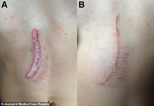 Her lucky escape has prompted doctors to remind the public about the dangers of using electrical gadgets in the bathroom(pictured, the wounds she was left with post-surgery)