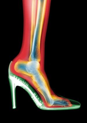 X-ray of leg in a stiletto shoe.