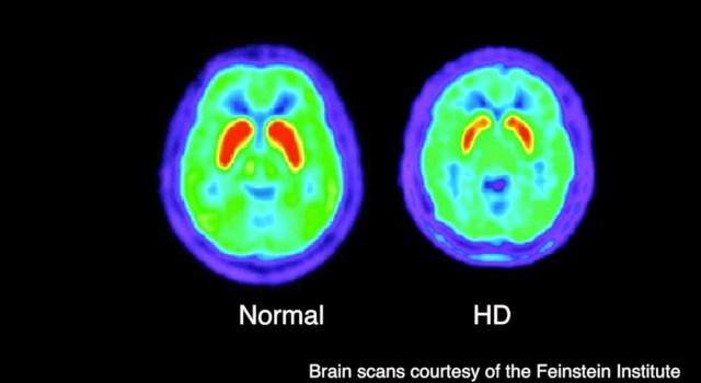 HD-n-Normal-Brain