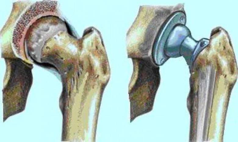 orthopedikh