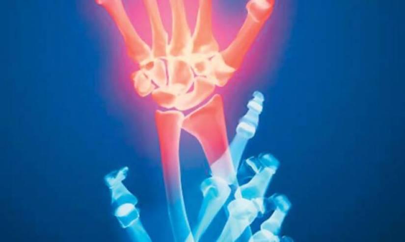 12 Οκτωβρίου -Παγκόσμια Ημέρα Αρθρίτιδας εκστρατεία ενημέρωσης για τα ρευματικά νοσήματα
