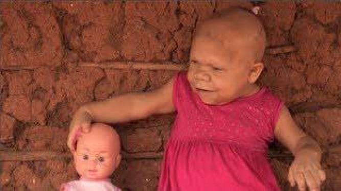 Η απίστευτη περίπτωση μιας 35χρονης γυναίκας που γεννήθηκε με σπάνια ασθένεια και μοιάζει με 9 μηνών μωρό.