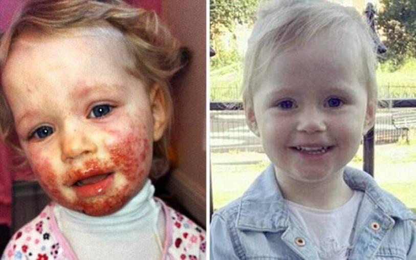 Ιός «έτρωγε» το δέρμα τρίχρονου κοριτσιού