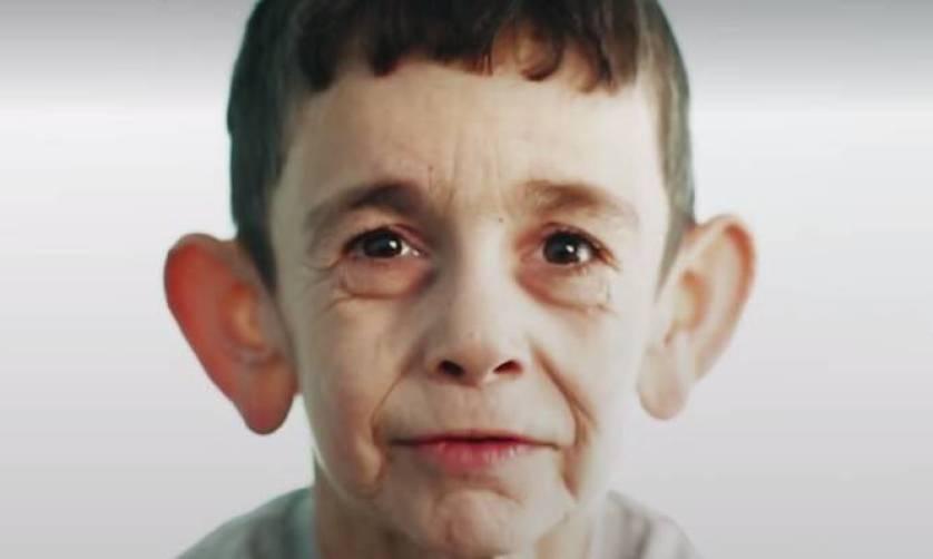 """Προγηρία: Ο 7χρονος που """"ζει στο σώμα"""" 70χρονου – Συγκλονίζουν οι εικόνες [vid]"""