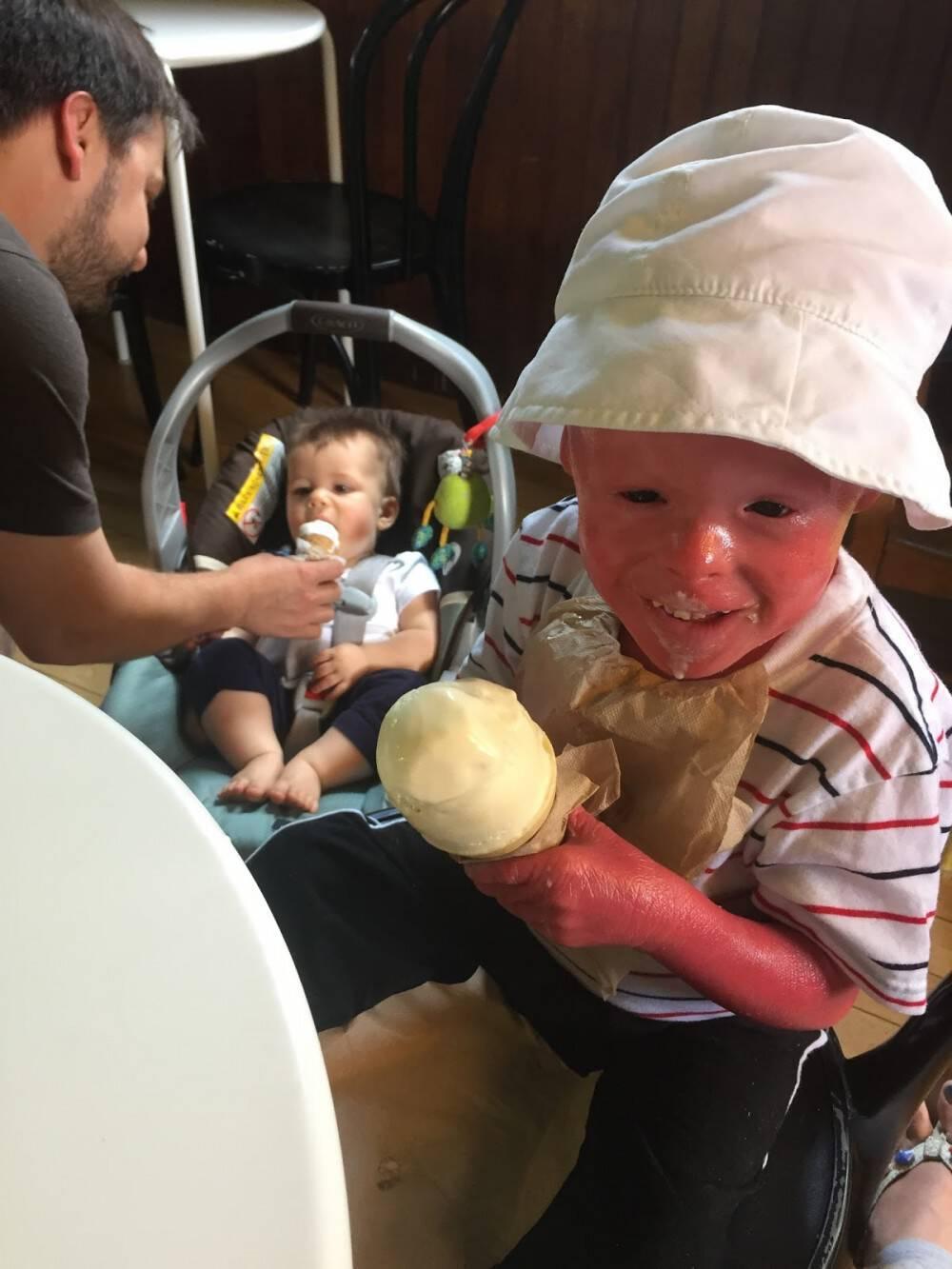 Μωρό γεννιέται με το κορμάκι του καλυμμένο με παχιά λευκά «λέπια». 5 χρόνια μετά, οι γιατροί δεν έχουν ξαναδει πρόσωπο σαν το δικό του.