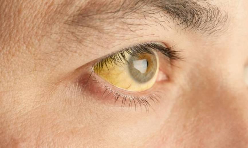Χολερυθρίνη: Τι είναι, φυσιολογικές τιμές και ασθένειες που θέλουν προσοχή