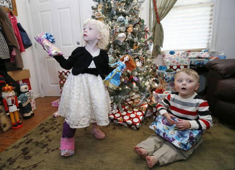 Μητέρα που γέννησε δίδυμα, παρατηρεί ότι και τα δυο πόδια της κορούλας της έχουν παράξενα πρηξίματα.