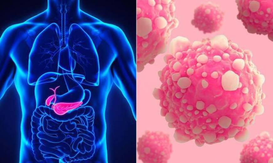 Διαβήτης: Πότε είναι πρώιμη ένδειξη για κρυφό καρκίνο του παγκρέατος