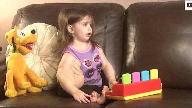 Μαμά γεννάει την κόρη της αλλά παρατηρεί πως το μωρό έχει πρηξίματα «ενός bodybuilder» από την μέση και πάνω