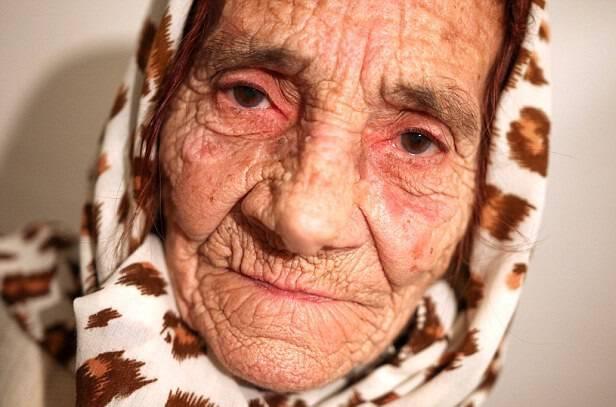 80χρονη θεραπεύει γλείφοντας… τα μάτια των «ασθενών» της και χρεώνει κάθε επίσκεψη 10 ευρώ
