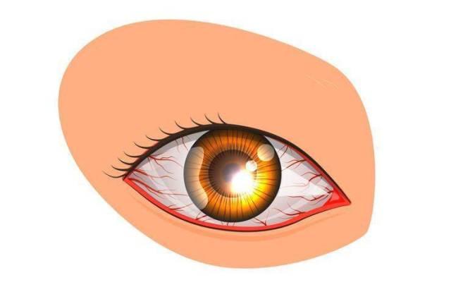 Μάτια που κοκκινίζουν: 10 πιθανές αιτίες & τι να κάνετε