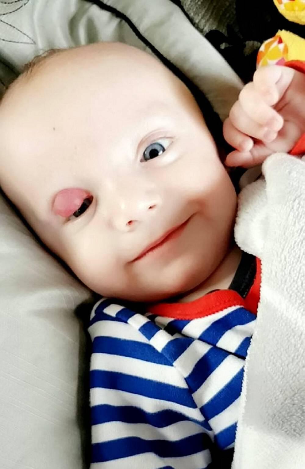 Το πρόωρο μωρό τους γεννήθηκε με έναν μεγάλο όγκο στο μάτι. Όταν οι γιατροί τους απογοήτευσαν, δεν έχασαν την πίστη τους και πέτυχαν το ανέλπιστο!