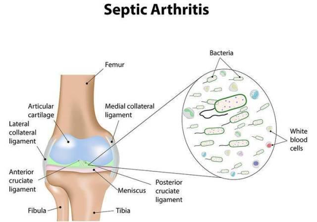 Πόνοι στις αρθρώσεις: 6 ανησυχητικές αιτίες
