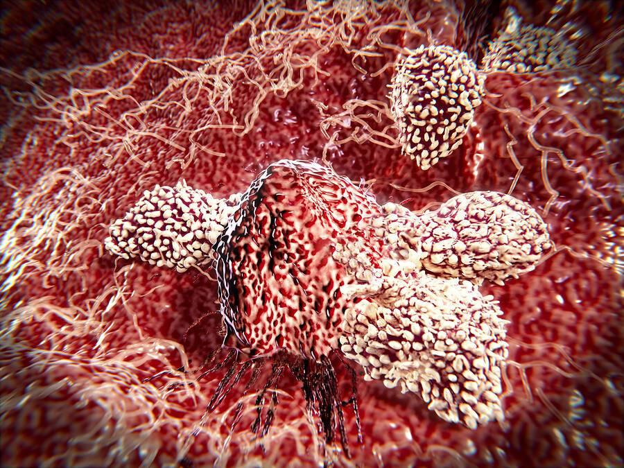 Καρκίνος: Η αποκωδικοποίηση του γονιδίου ανοίγει νέους δρόμους στην αντιμετώπιση της νόσου