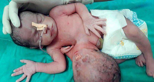 Μωρό στην Ινδία γεννήθηκε με ένα δεύτερο κεφάλι κολλημένο στο στομάχι του