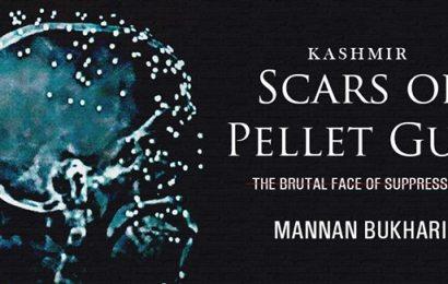 KASHMIR Scars of Pellet Gun By Mannan Bukhari