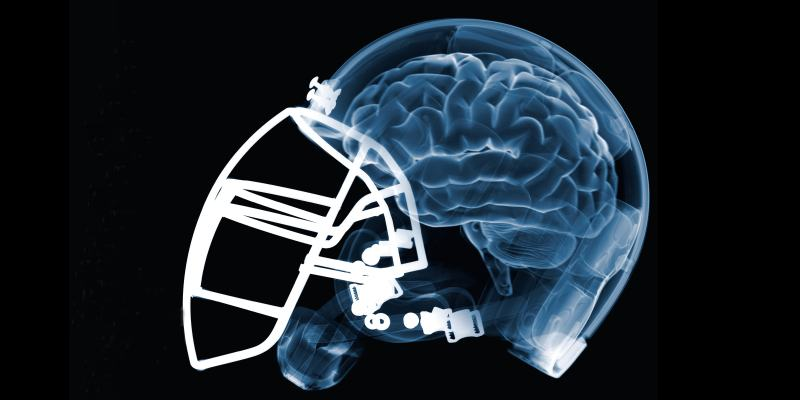 Brain Damage Football Cannabis