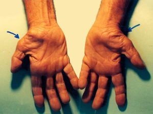 Untreated carpal tunnel syndrome, where the muscles at the base of the thumbs wasted away. Photo: Dr Harry Gouvas