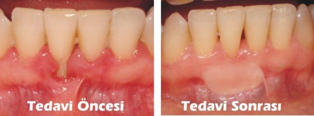 Dişeti hastalıklarının tedavisi nedir? ile ilgili görsel sonucu
