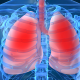 Regular use of bleach increases risk of lung disease