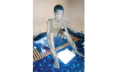 SS1 student hospitalised after 41-days dry fasting