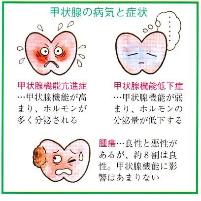 甲狀腺の病気と癥狀 : 知っておきたい「本人が気づきにくい ...