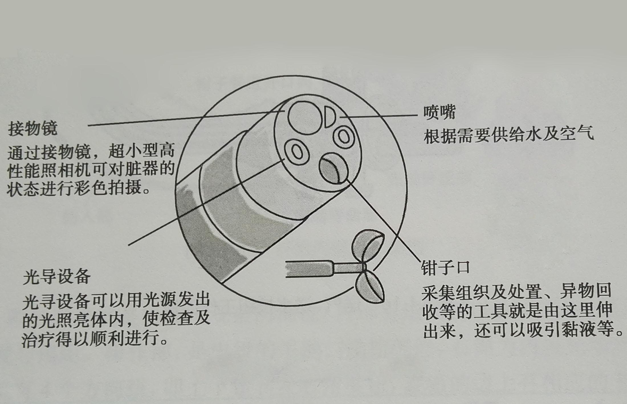 纖維內窺鏡:發展史,結構和原理,纖維內窺鏡的分類,纖維內窺鏡的臨床套用,清洗消毒維_中文百科全書