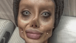 Teen dubbed 'Corpse Bride' reportedly had 50 surgeries to look like Angelina Jolie