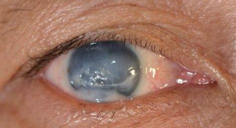 Glaucoma accounts for 4.5m blindness worldwide
