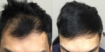 Prp For Hair Loss Treatment Info Price Reviews Nexus Clinic